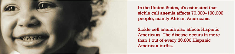 an introduction to the brief history of sickle cell disease A 16-year-old boy with known sickle cell disease presented to the in the left superomedial orbit, there was a well-defined 23 emergency room with a 3-day history of headache and periorbital.