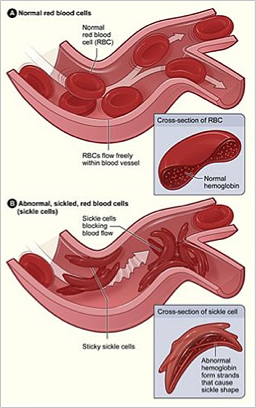 sickle cell anemia patient case study Case 34 sickle cell disease jaundice, pneumococcal sepsis or meningitis, severe anemia with an enlarged spleen, or acute chest syndrome case 34.
